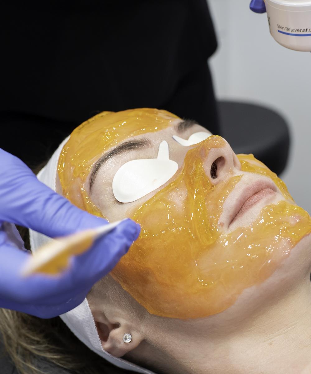 orange gel being applied for Kleresca treatment