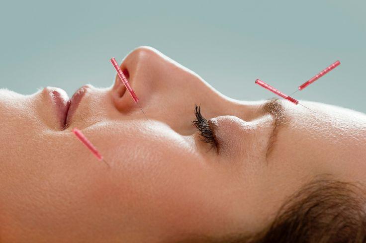 Brisbane's best acupuncture clinics